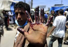 افزایش شهدای حمله سعودی ها به زندان الزیدیه یمن