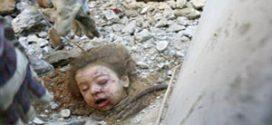 جنایت هولناک اسرائیل علیه کودکان یمنی و اجساد آنها